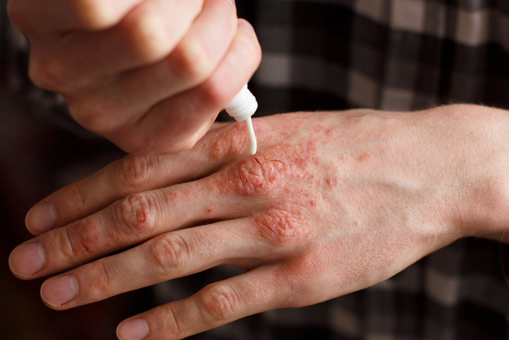 Psoriasis on hand - Histamine Intolerance. An Overlooked Cause For Your Nagging Symptoms?